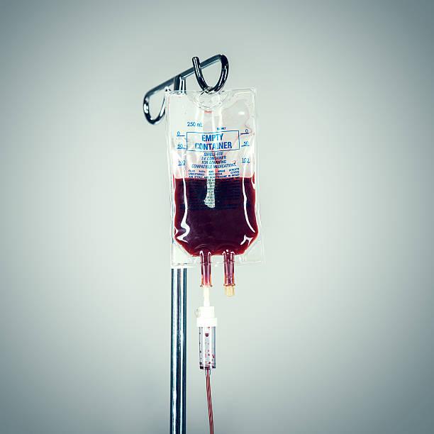 Sangue di fleboclisi in ospedale - foto stock