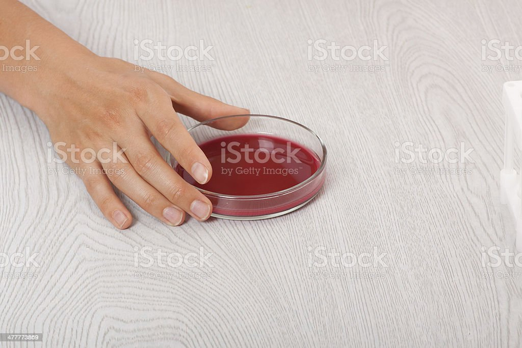 blood in petri dishes royalty-free stock photo