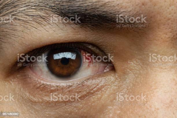 しわ 眼球