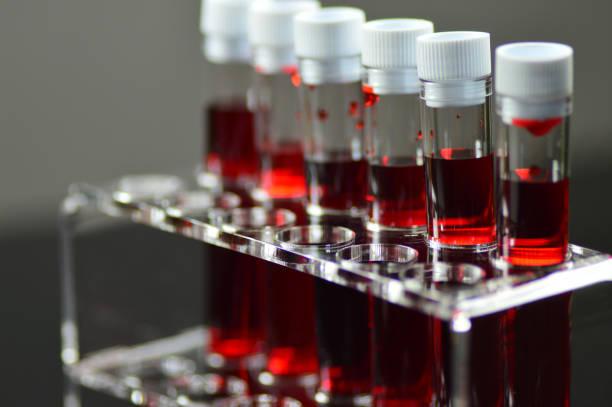 blut-labor-tests - anämia stock-fotos und bilder