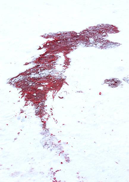 Prologo - Scylla Sigridh - Página 2 Blood-on-snow-picture-id182689981?k=6&m=182689981&s=612x612&w=0&h=U8tmzMW-5RLCfvw3iuOx7Z0GFKp90qwG7qYD9oOkkGA=