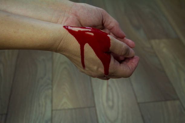 Blood on the hands of a killer who killed a man stock photo