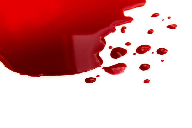 Blood puddle stock photo