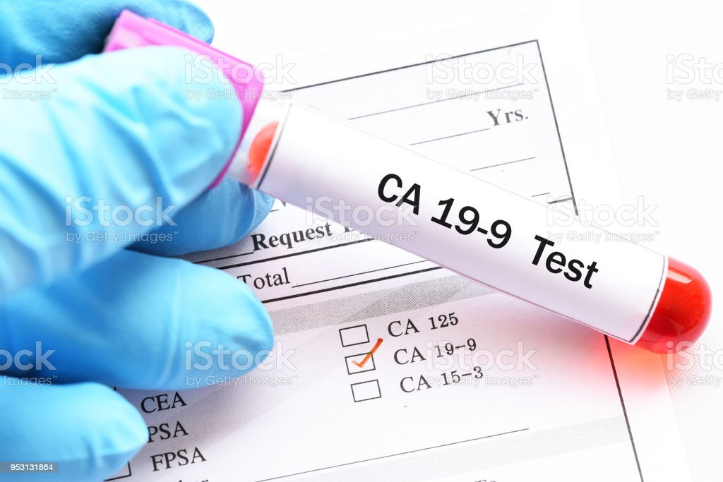 Blood sample for CA19-9 test stock photo