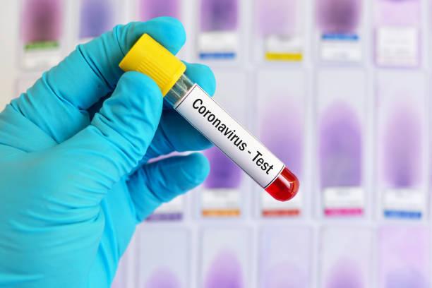 Blood sample for coronavirus test stock photo