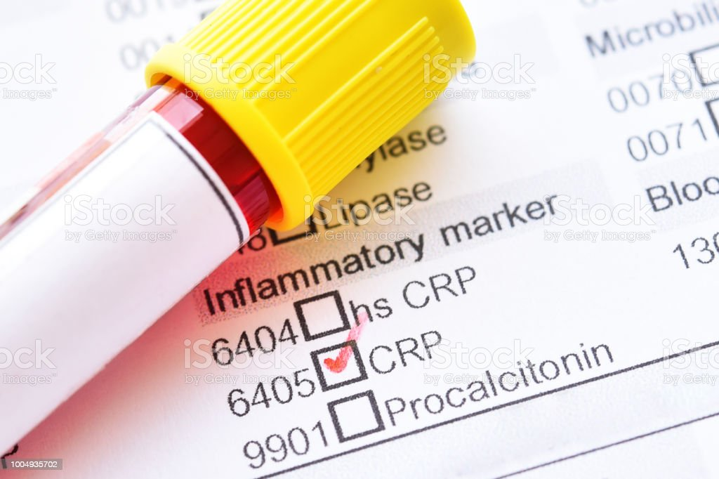Blood sample for C-reactive protein (CRP) test stock photo