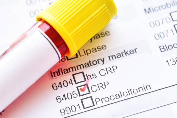 blood sample for c-reactive protein (crp) test - tessuto umano foto e immagini stock