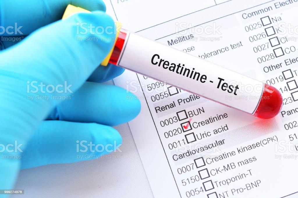 Blood sample for creatinine test stock photo