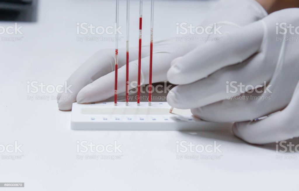 blood sample for hematocrit testing stock photo