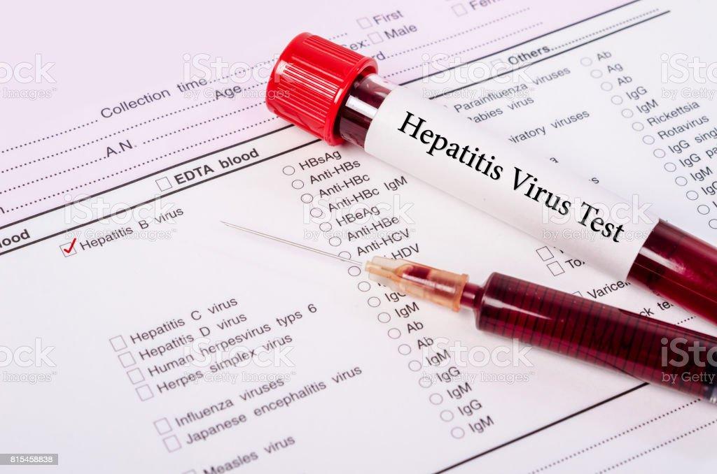 Blood sample for hepatitis B virus (HBV) stock photo