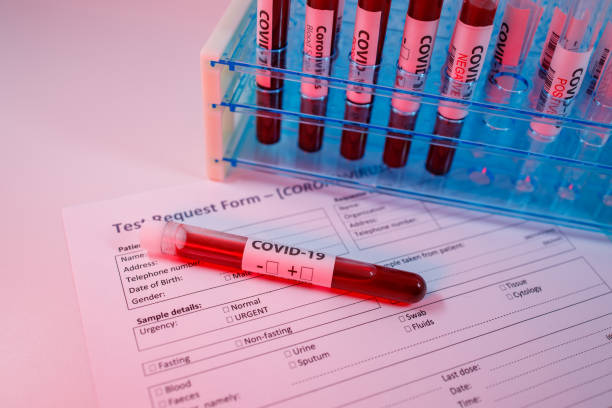 Blood sample for the new rapidly spreading Coronavirus that originated in Wuhan, China. Test tube on an empty test request form for covid-19, test tubes rack in the background stock photo