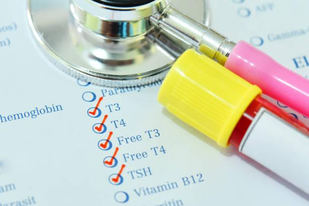 blodprov för sköldkörtelhormon test - hormon bildbanksfoton och bilder