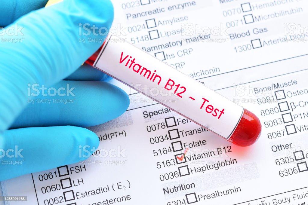 Blood sample for vitamin B12 test stock photo