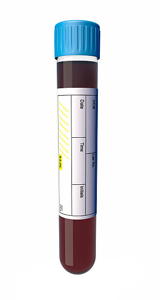 Blood Sample in a Vial with Medical Label – Foto