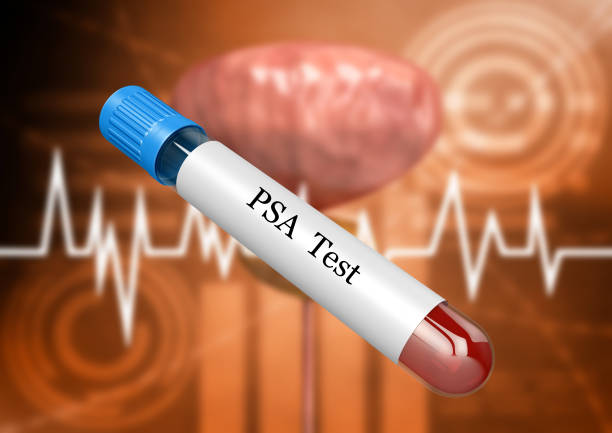 blood sample in laboratory test tube for psa examination for detection of prostate disorders and diseases. - prostate exam stock pictures, royalty-free photos & images