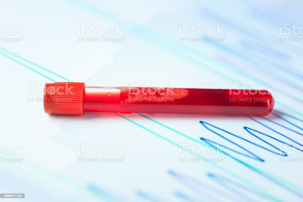 blood sample in test tube with spectrum graph stock photo