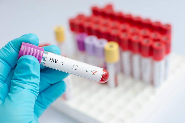 hiv bluttest - aids stock-fotos und bilder