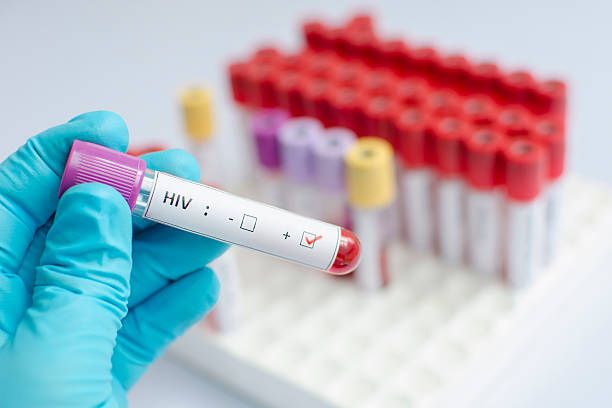 HIV blood sample Blood sample positive with HIV hiv stock pictures, royalty-free photos & images