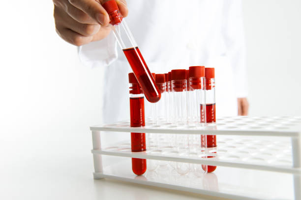 Blood sample stock photo