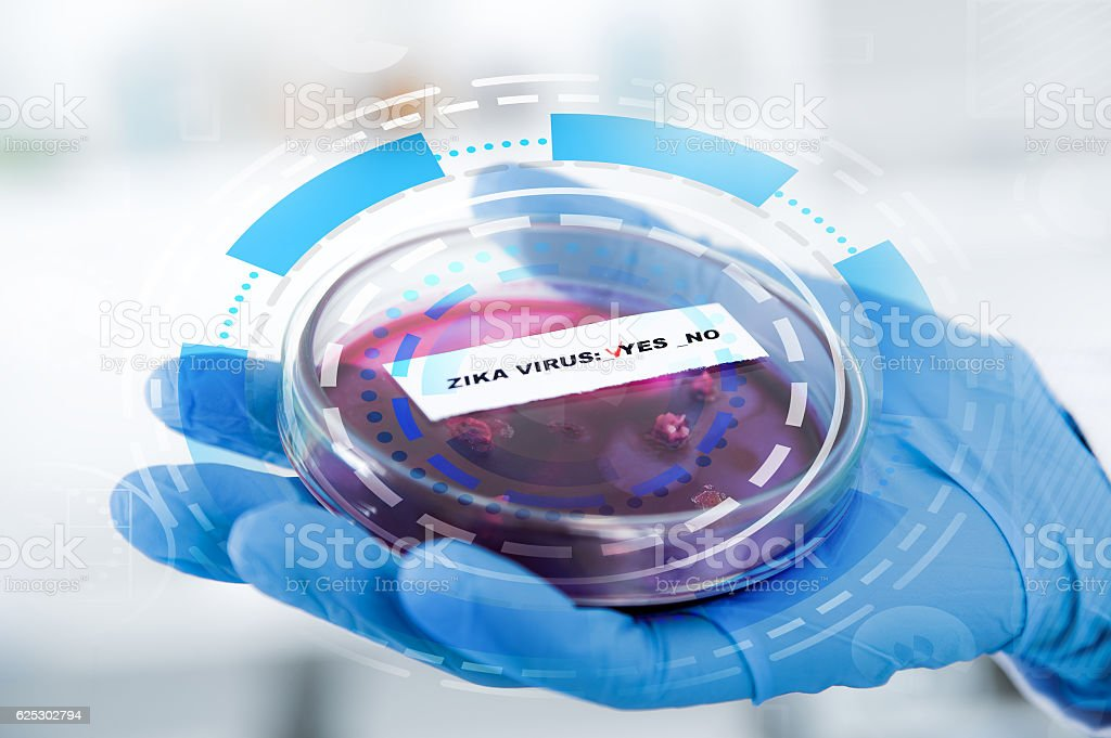 Blood sample positive with Zika virus stock photo
