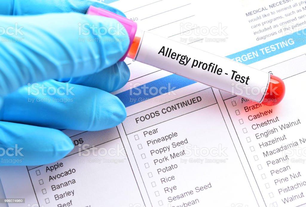 Blood sample tube for allergy profile test stock photo