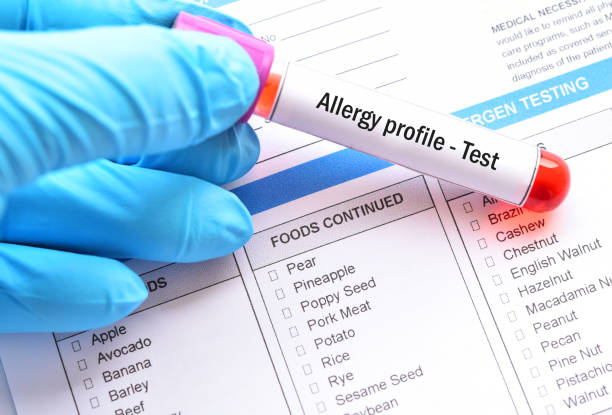 blood sample tube for allergy profile test - food allergies stock photos and pictures