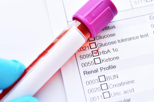 what is a hemoglobin a1c lab test