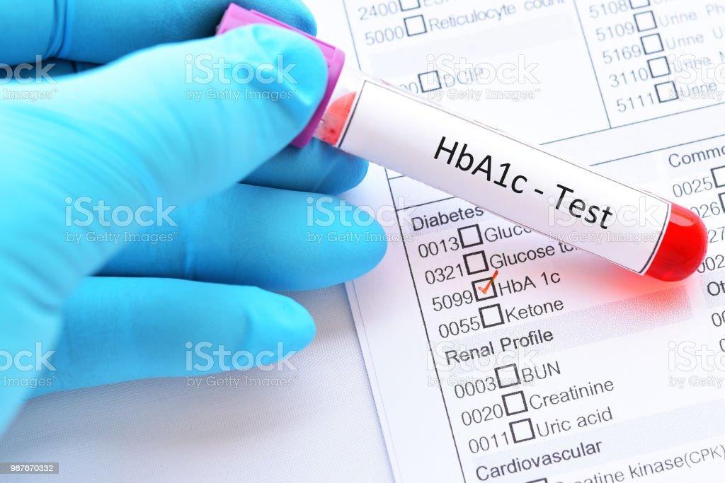 Blood sample tube for HbA1c test stock photo