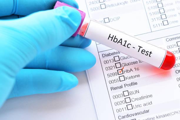 blut-probenröhrchen für hba1c-test - hyperglycemia stock-fotos und bilder