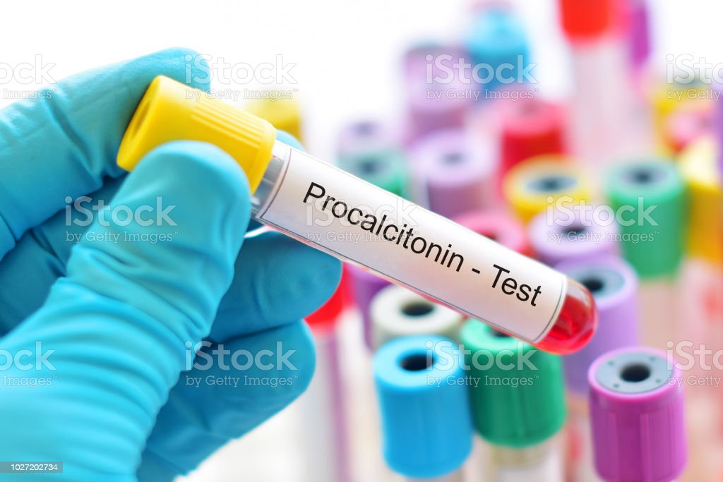 Blood sample tube for procalcitonin test stock photo