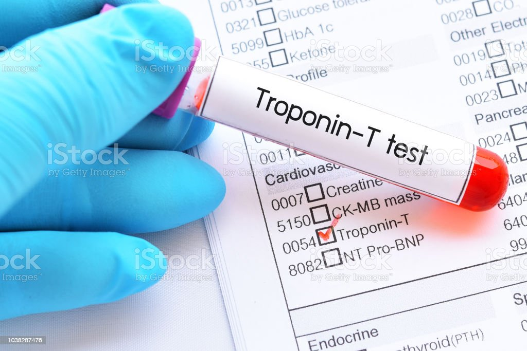 Blood Sample Tube For Troponint Test Stock Photo - Download