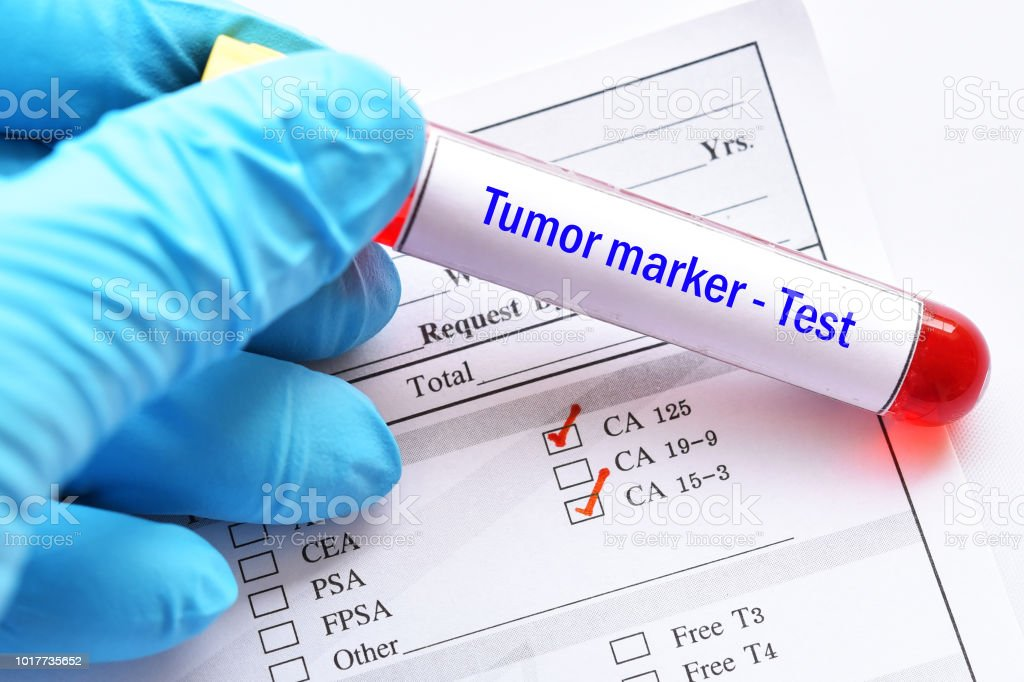 Blood sample tube for tumor marker test stock photo