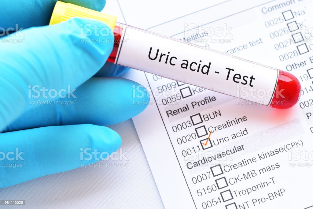Blood sample tube for uric acid test stock photo