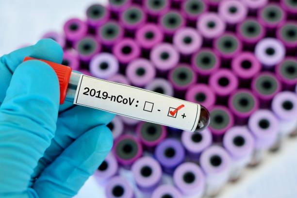 Blood sample tube positive with novel coronavirus 2019 stock photo