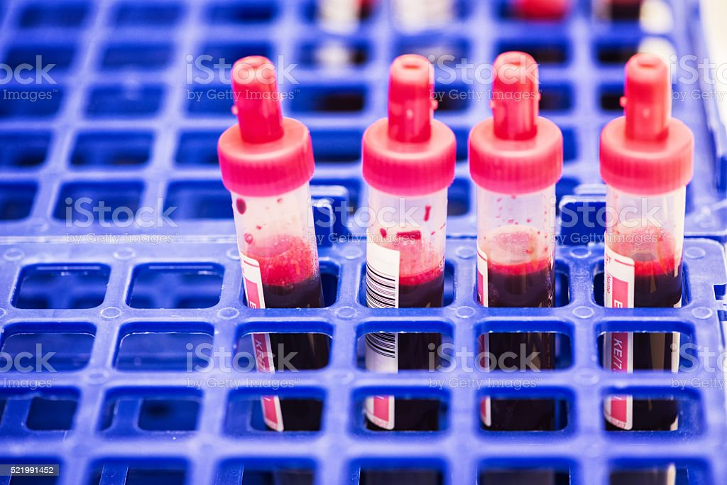 blood sample tubes stock photo