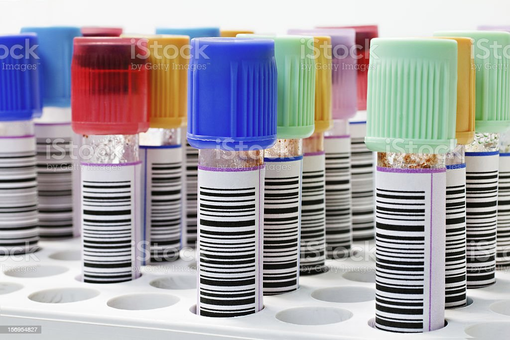blood sample tubes placed in a rack stock photo