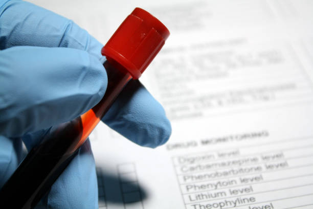 blood sample vial - serum stock photos and pictures