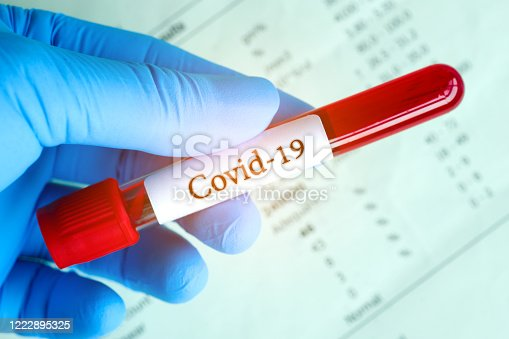 Blood samples and blood test results of the disease Coronavirus Covid 19.New epidemic prevention conce
