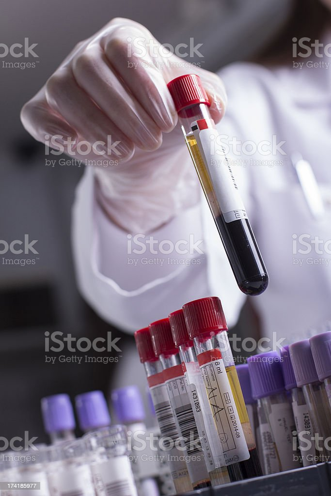 Blood Samples stock photo