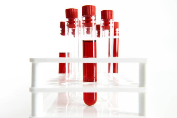 Blood Sampling Tubes stock photo