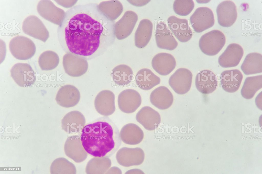 Blood smear of chronic lymphocytic leukemia (CLL) stock photo