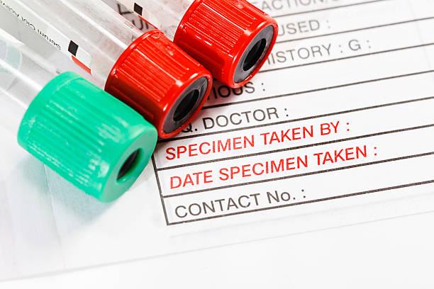 Blood Specimen Collection Tubes On Medical Form Ordering Tests Stock