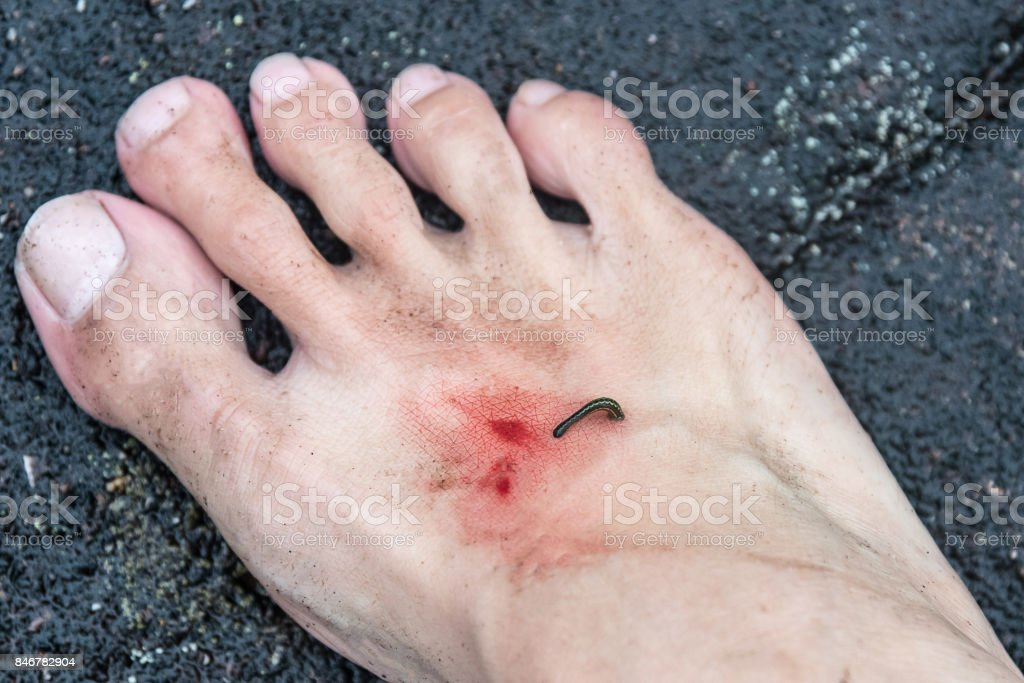 Blood Sucking Leech stock photo