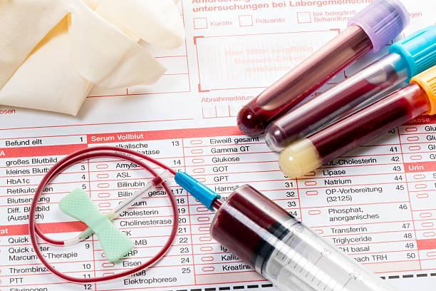 Анализу крови по екатеринбурге лаборатории в крови hbb анализ
