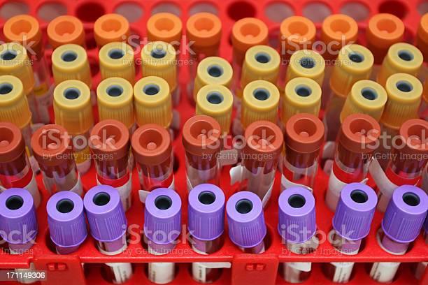 Prueba De Muestra De Sangre Foto de stock y más banco de imágenes de Agujero