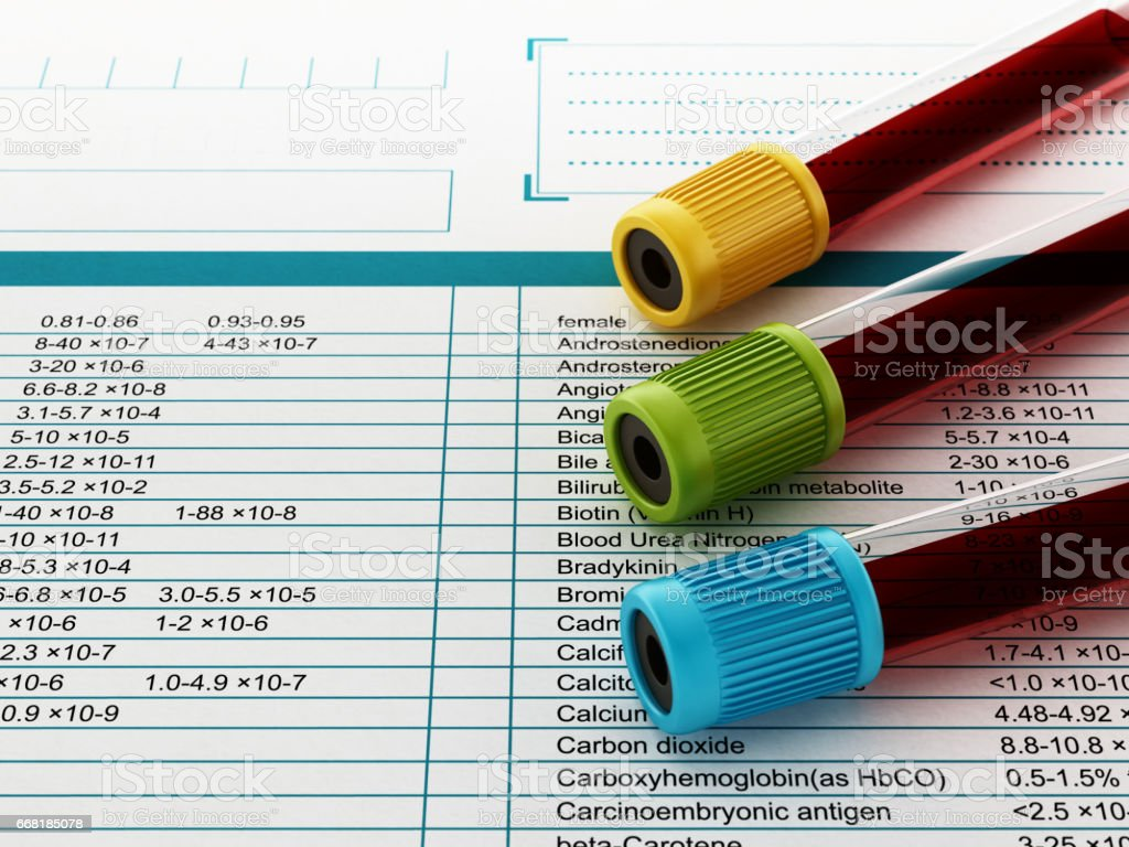 Blood test tubes with multi-colored lids standing on medical documents stock photo