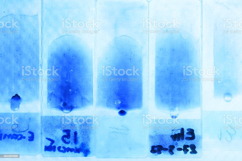 blood testing in laboratory for microscope stock photo
