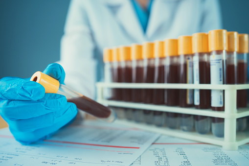 istock Blood Tests 1160702480