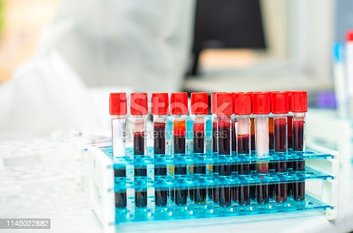 istock blood tube test in the research laboratory 1145022882