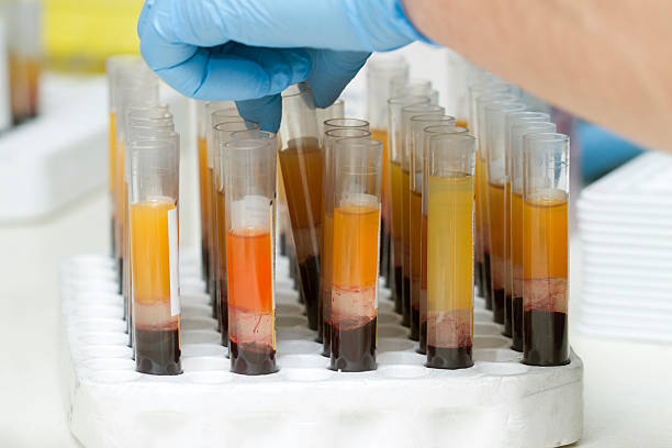 Blood tubes at the microbiology laboratory stock photo